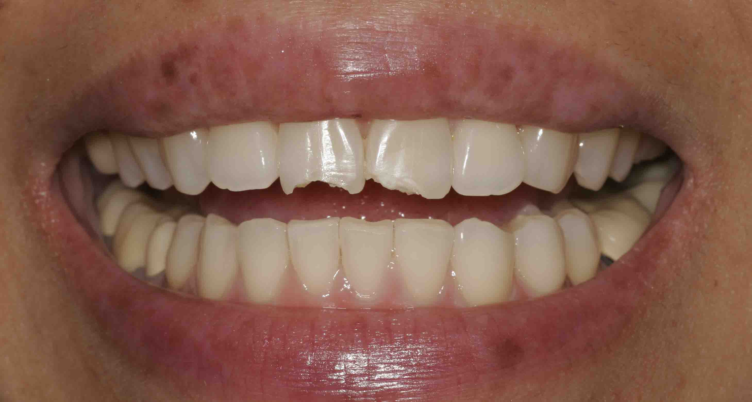 Close up of an actual patient mouth before receiving a smile makeover from Dr. Joe, a dentist in Poway, CA