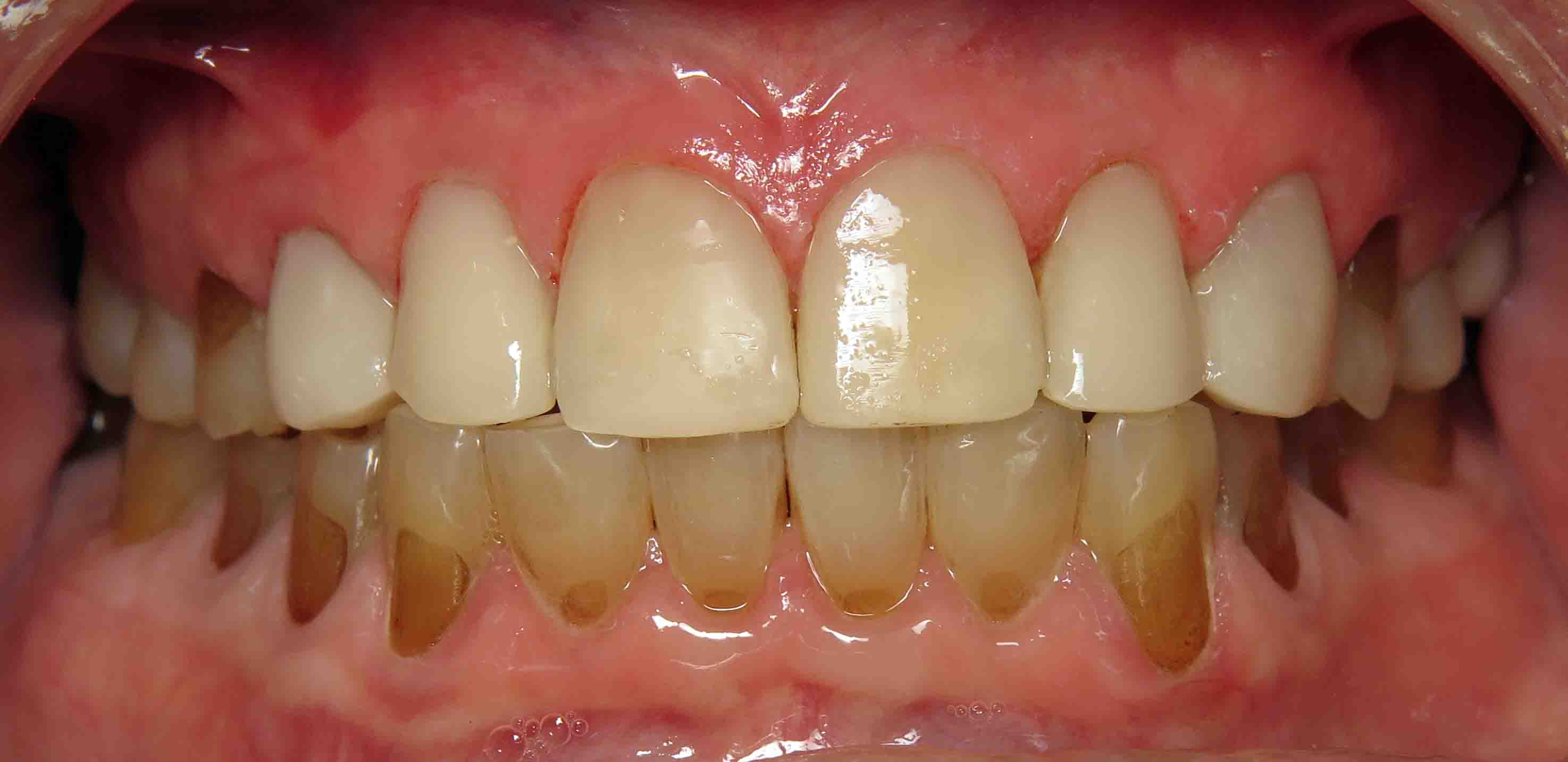 Close up of an actual patients mouth after receiving smile design dental services in Poway CA