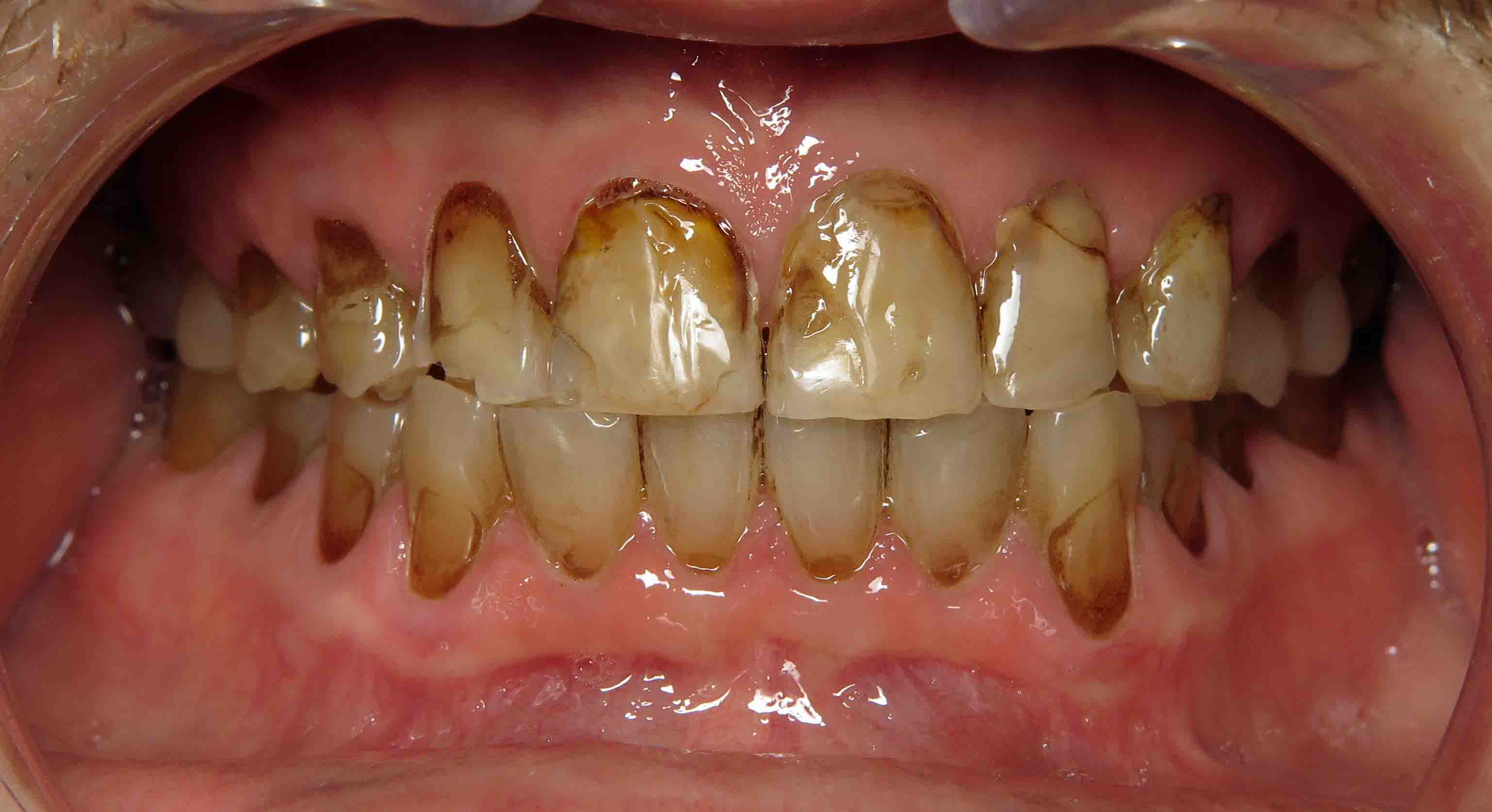 Close up of an actual patients mouth before receiving affordable smile design in Poway CA