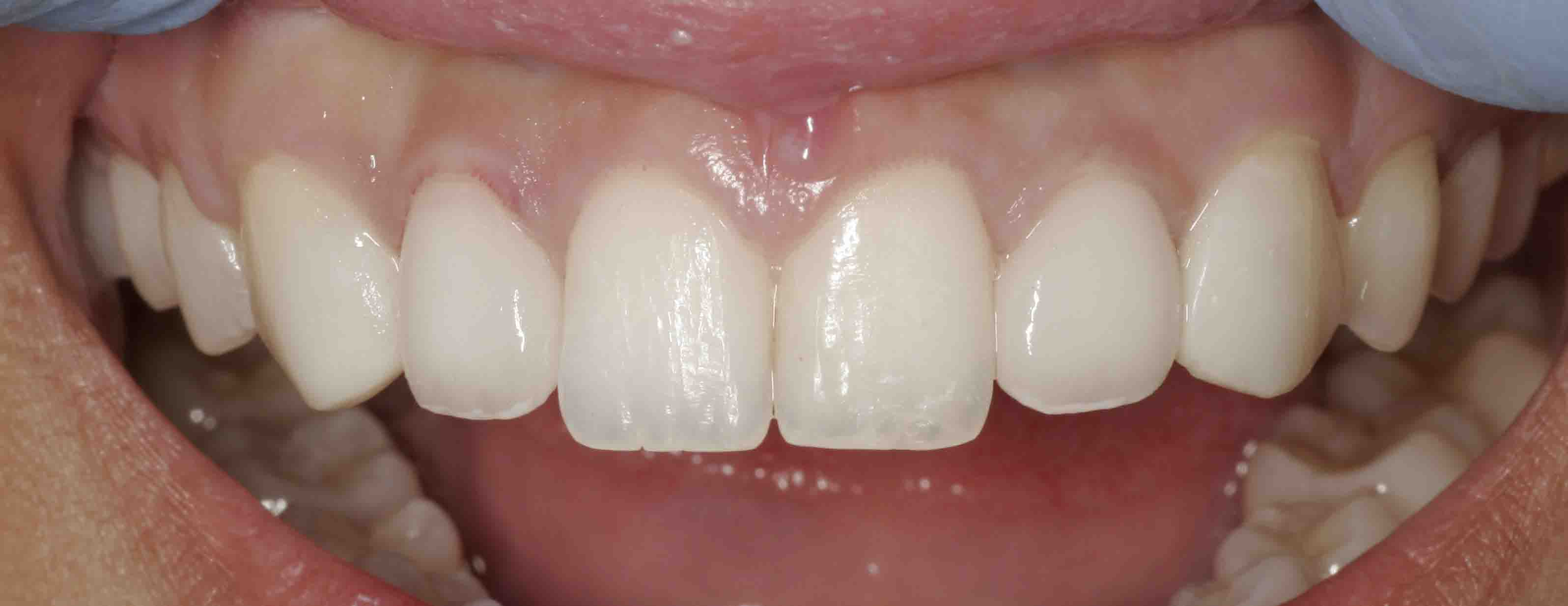 Close up of an actual [patient mouth after receiving porcelain veners in Poway CA