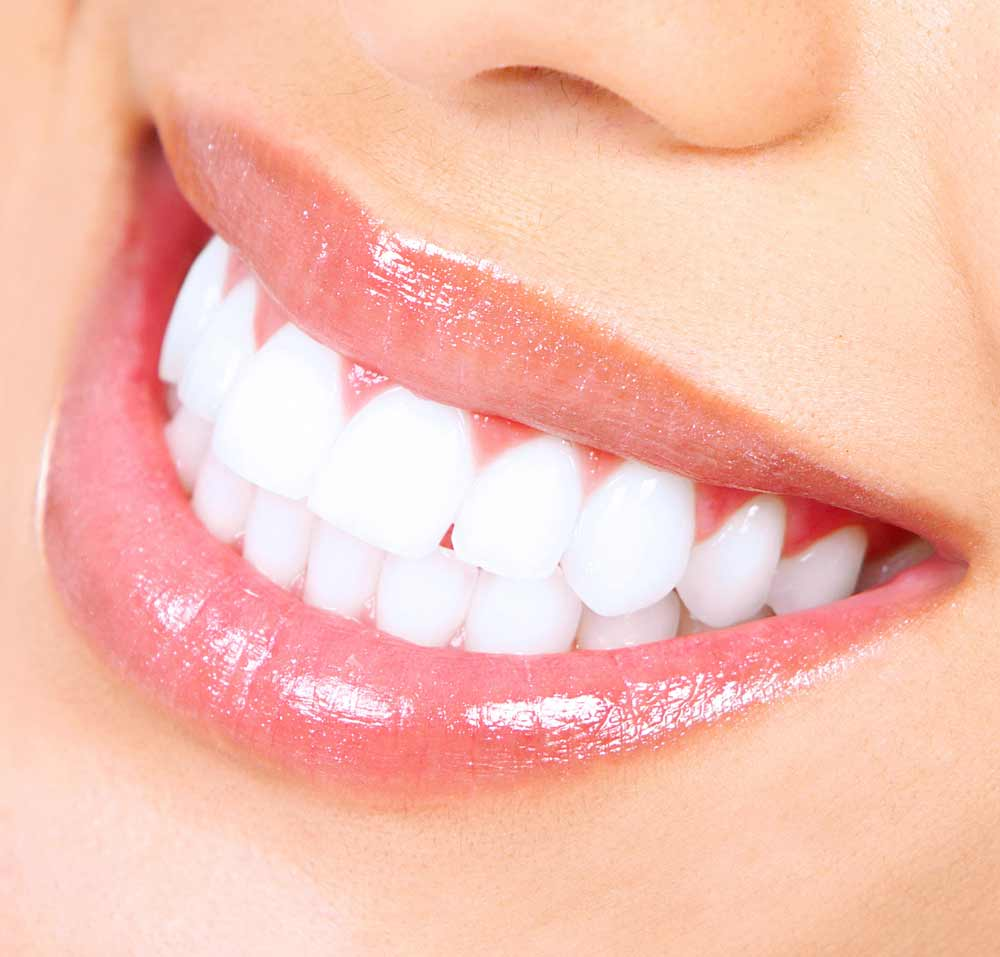 close up of a healthy white smile thanks to our teeth whitening in Poway, CA