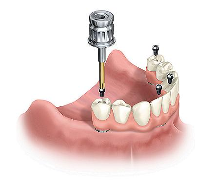 Illustration of all on 4 dental implants and how they are placed