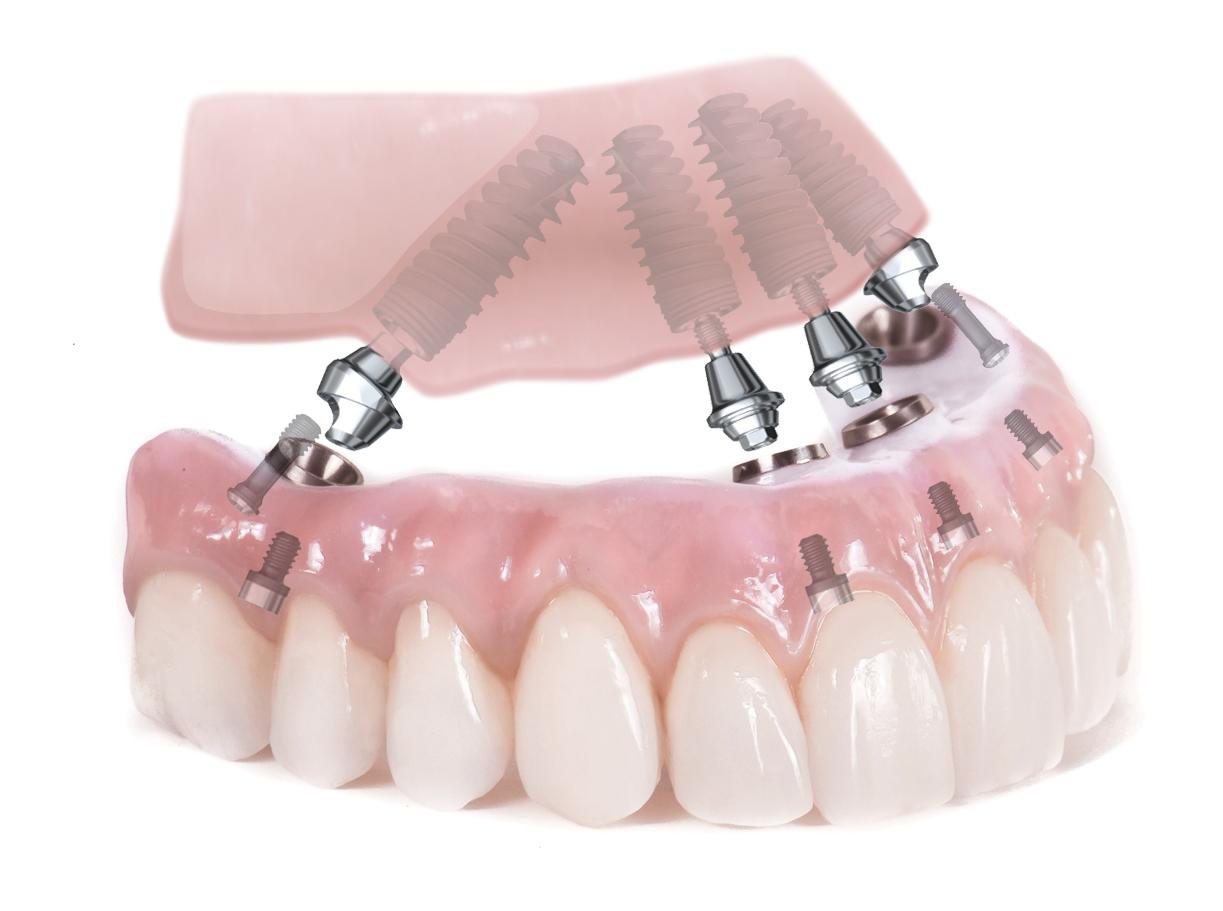 Illustration of all on 4 dental implants