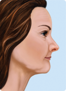 Drawing of a woman's profile to show phase 2 step in how facial structures collapse when teeth are missing