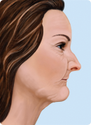 Drawing of a woman's profile to show phase 3 step in how facial structures collapse when teth are missing