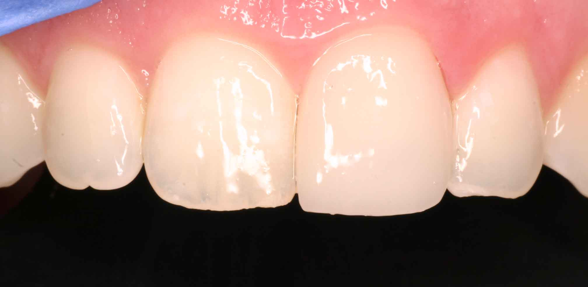 Close up of an actual patients mouth after receiving porcelain veneers in Poway CA that corrected her broken tooth