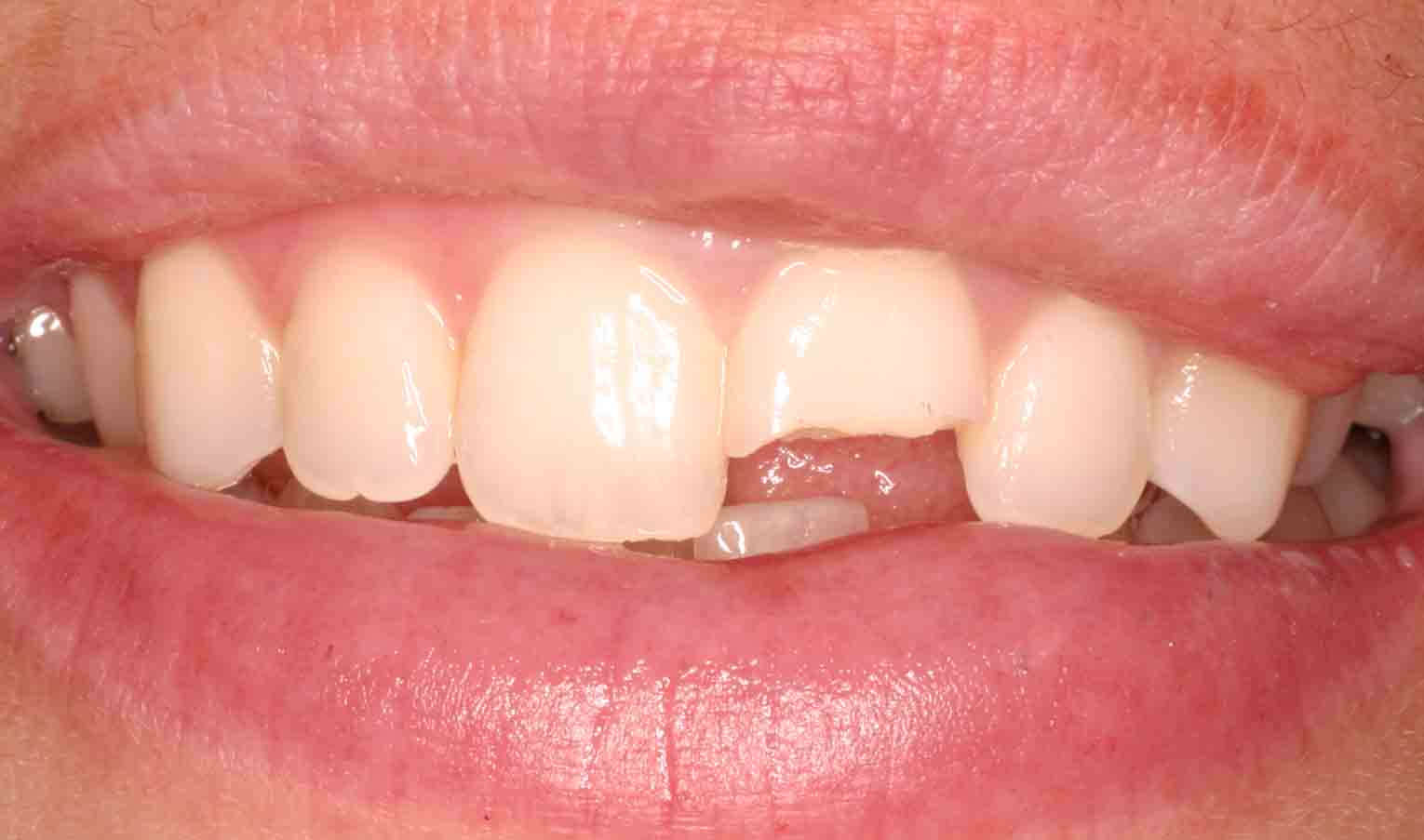 Close up of an actual patients mouth with a broken tooth before receiving porcelain veneers in Poway CA