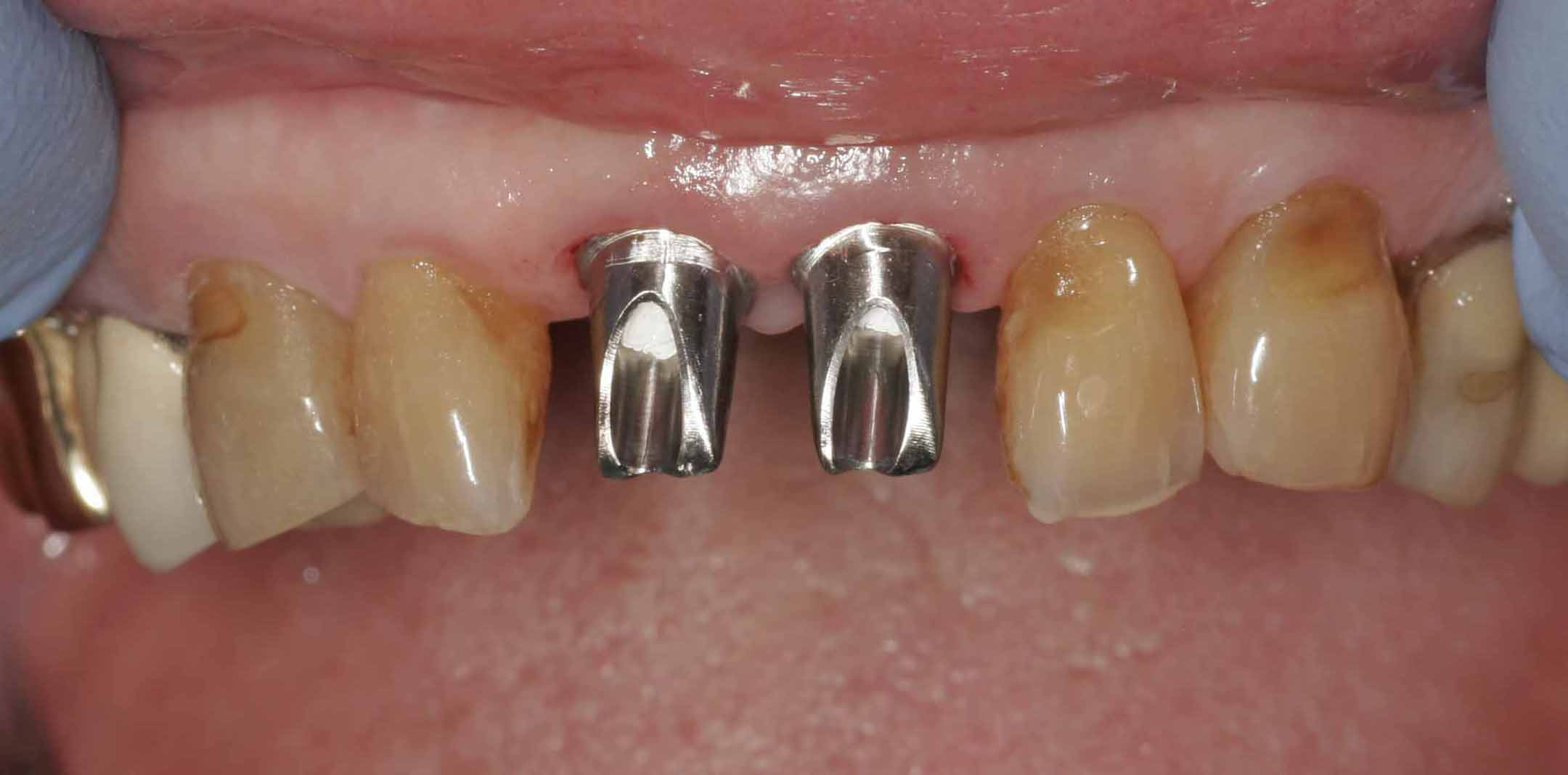 Close up of an actual patient mouth showing one of the phases of dental implants