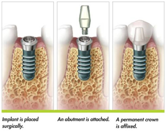 Illustration of how dental implants in Poway are placed.