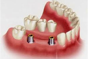 Illustration of a lower jaw with teeth and how dental implants in Poway are placed