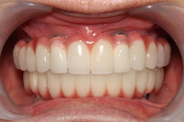 Close up of an actual patients mouth showing dental implants in Poway CA look just like your natural teeth