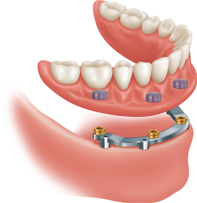 Illustration of a bar over dentures dental implant option and how it is placed.