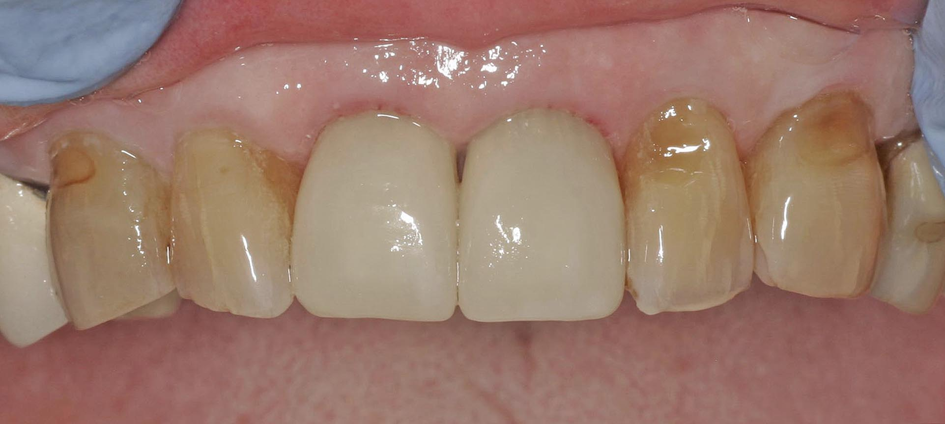 Close up of an actual patient mouth after the dental implant procedure has been completed