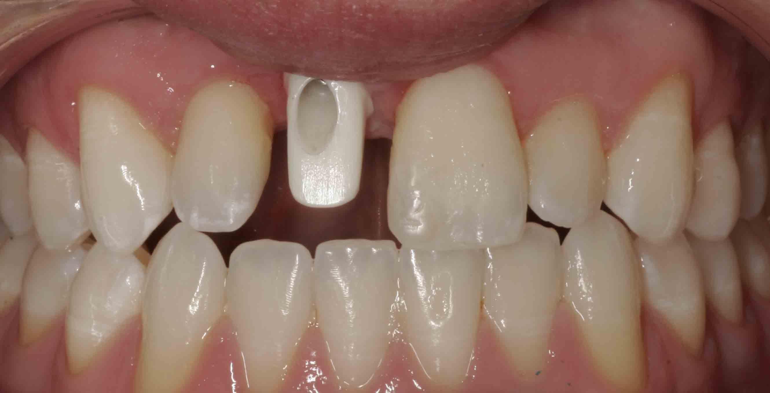 Close up of an actual patients mouth with a front abutment placed