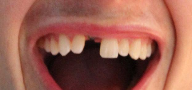 Close up of an actual patients mouth with a missing tooth who is about to receive dental implants to correct the issue