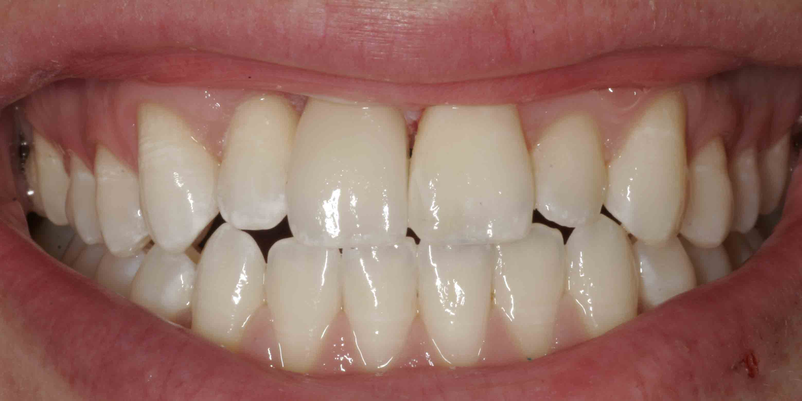Close up of an actual patients mouth after receiving dental implants in Poway, CA