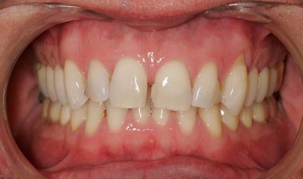 Close up of an actual patient mouth before receiving Invisalign and bonding as part of a smile makeover in Poway CA