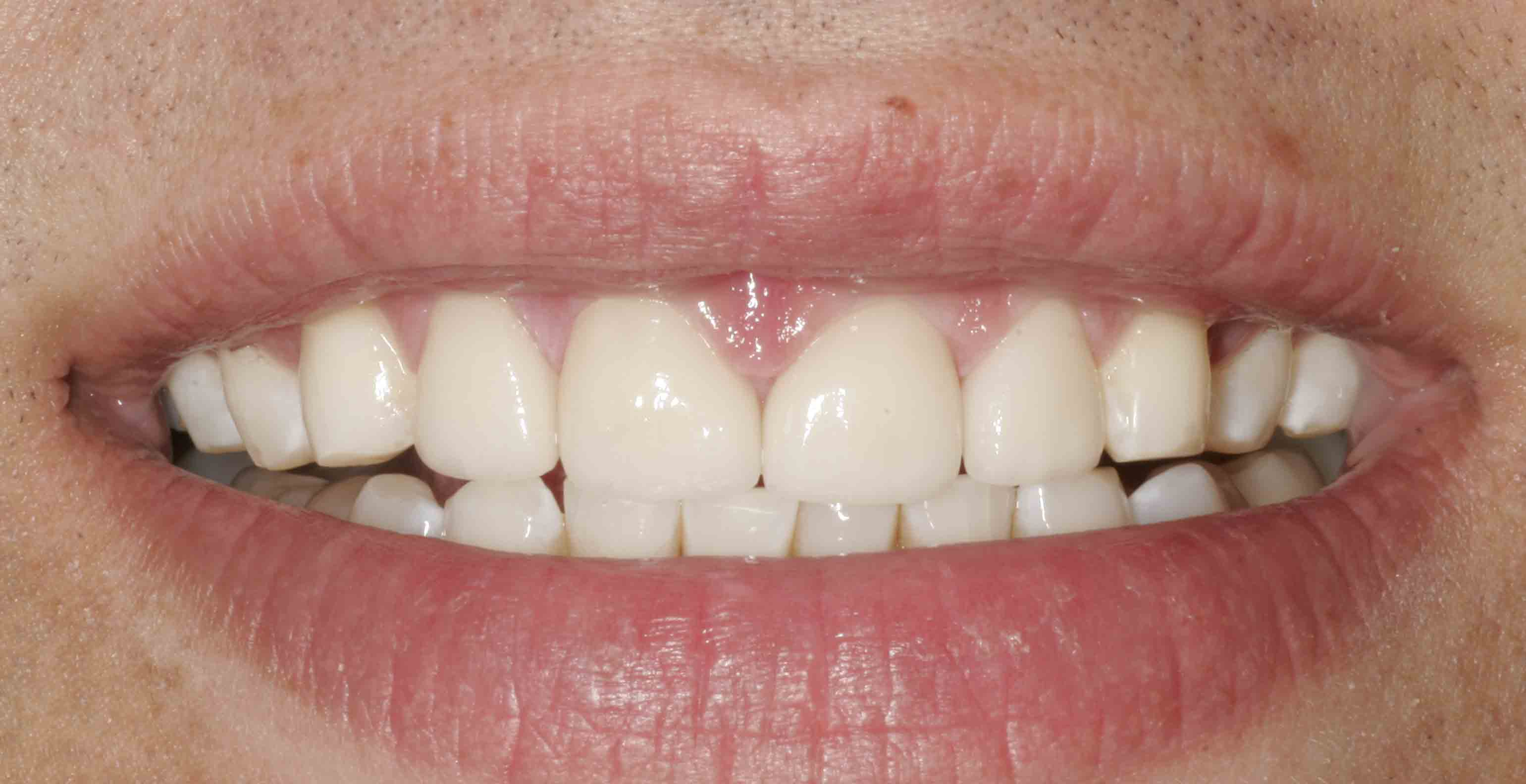 Close up of an actual patients mouth after receiving a smile makeover in Poway CA