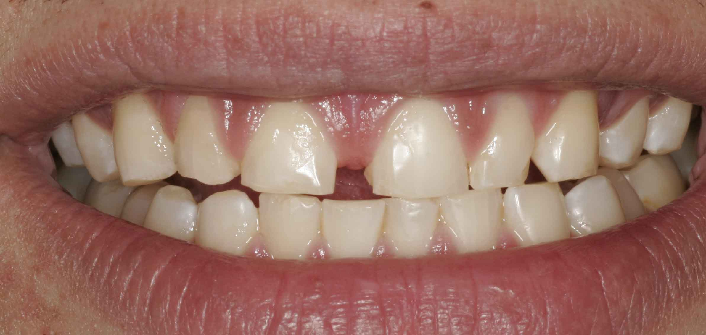 Close up of an actual patients mouth before receiving a smile makeover in Poway CA