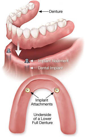 A more detailed illustration of how dental implants over dentures are placed.