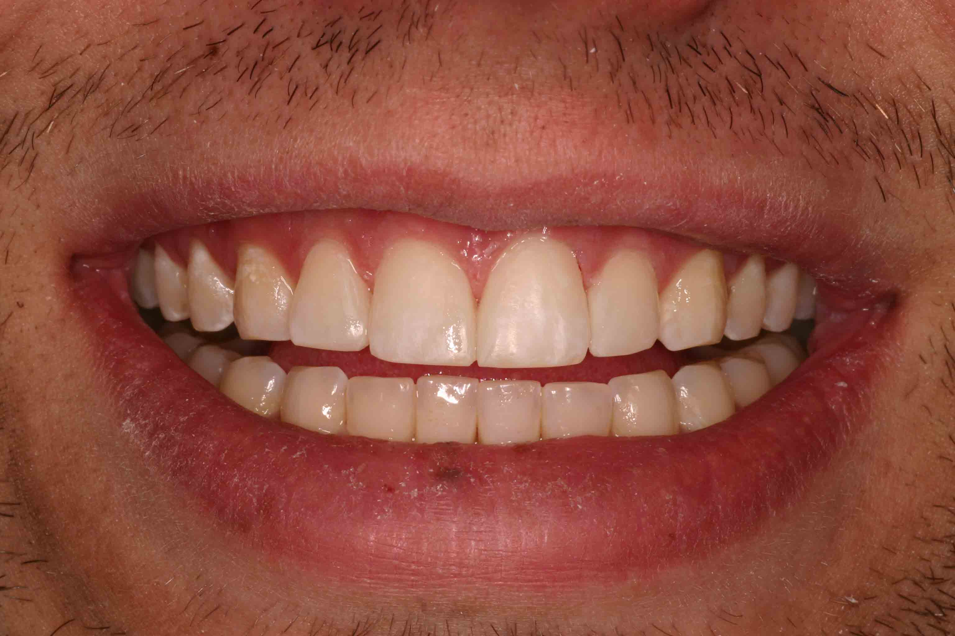 Close up of an actual patient mouth after receiving a smile makeover from Dr. Joe, a dentist in Poway, CA