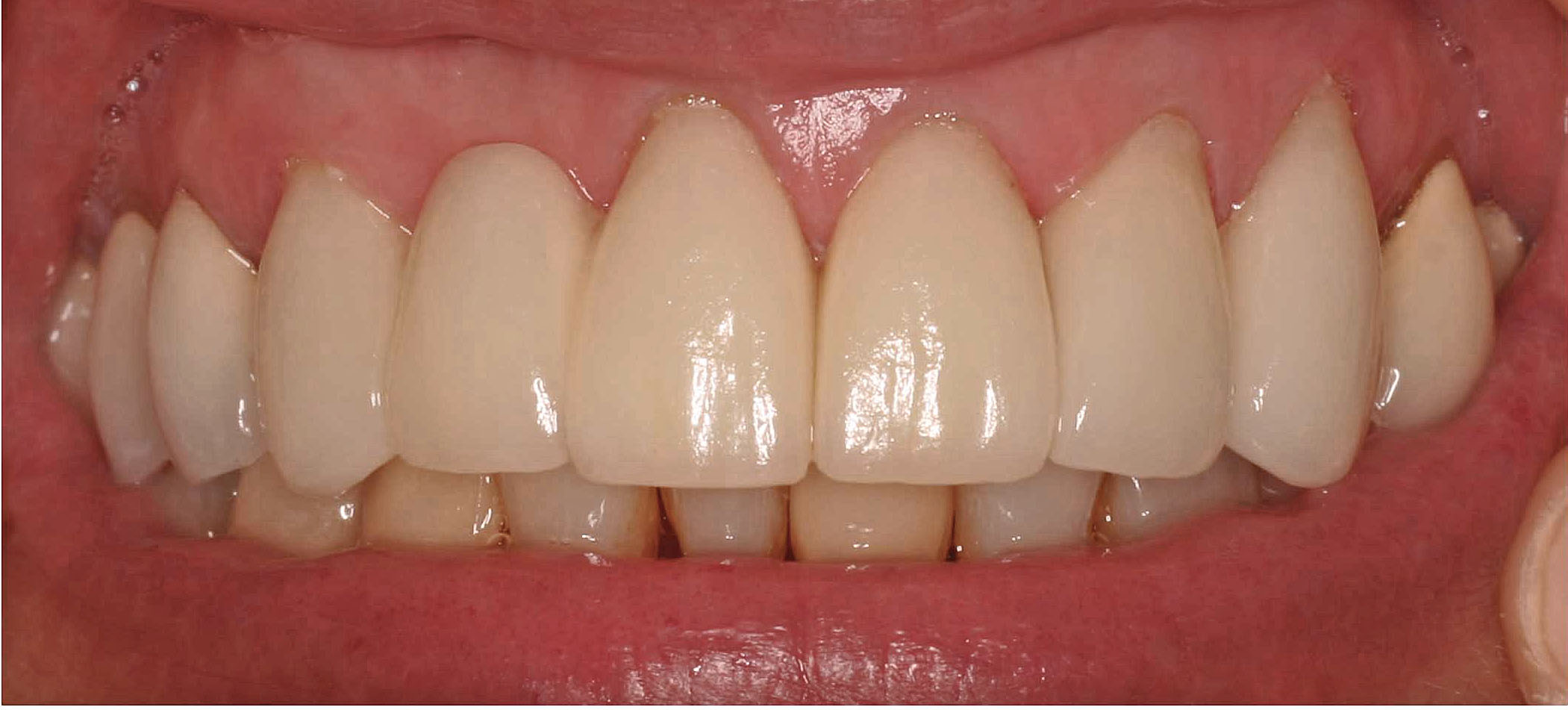 Close up of an actual patients mouth after a conservative smile makeover treatment