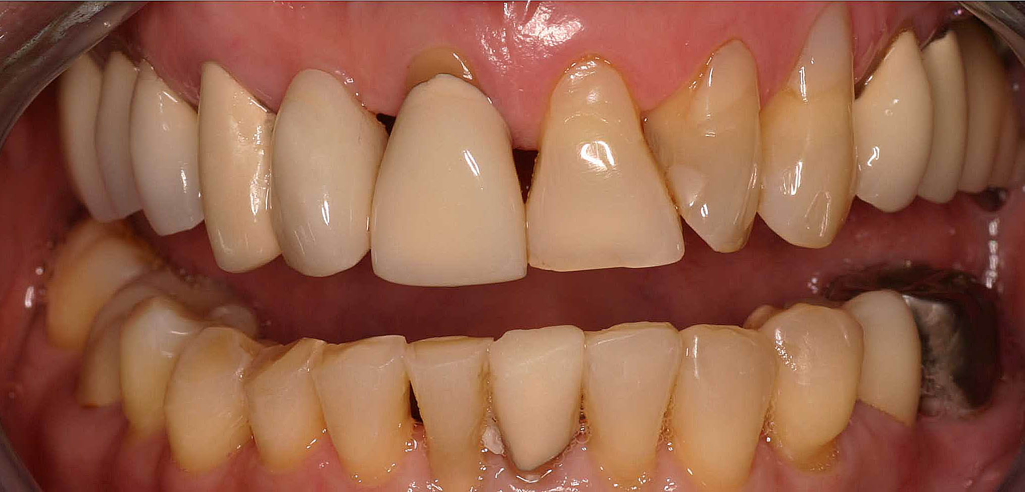Close up of an actual patients mouth before receiving porcelain crowns as part of a smile makeover in Poway CA