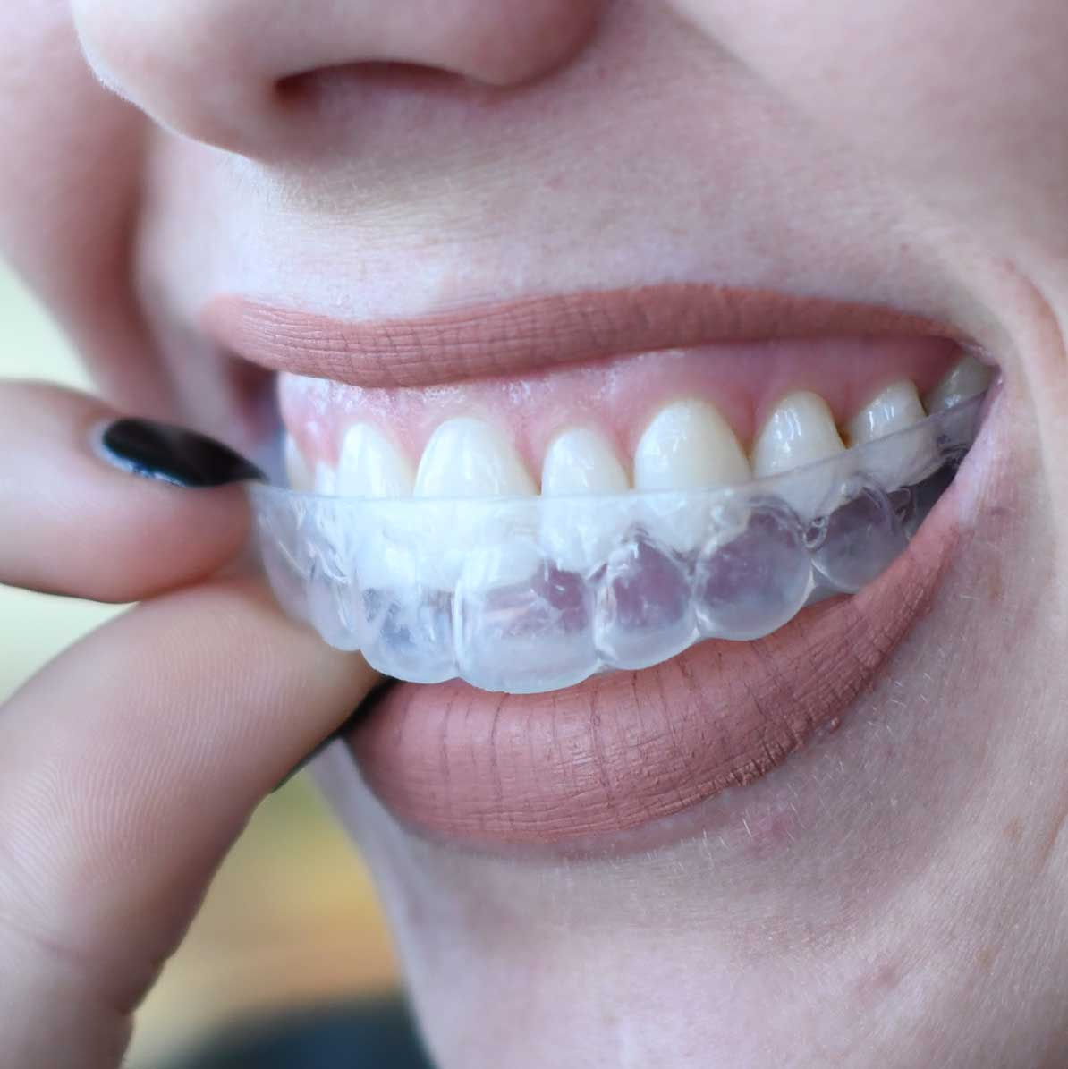 Close up of a woman inserting custom teeth whitening tray in Poway, CA
