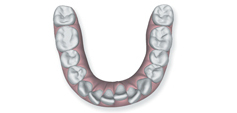 Illustration of crowded and rotated teeth to show that Invisalign in Poway, CA can correct this issue.