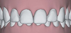 Illustration of teeth with a deep overbite to show that Invisalign in Poway, CA can correct this issue.