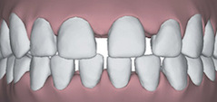 Illustration of gapped teeth to show that Invisalign in Poway, CA can correct this issue.