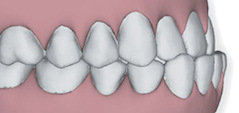 Illustration of teeth with a sever underbite to show that Invisalign in Poway, CA can correct this issue.