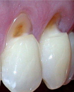 gum recession and toothbrush abrasion dentistry in poway