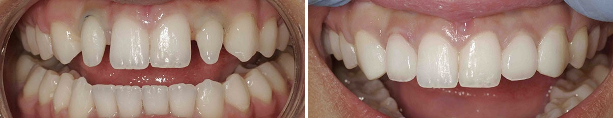 Before and after of a patient's smile with porcelain veneers