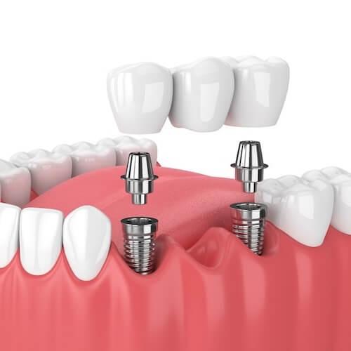 A representation of a dental implant anatomy