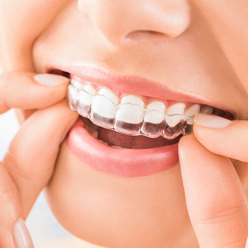 Close up of a patient placing their Invisalign clear aligners